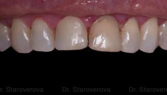 Тотальная реконструкция улыбки для пациентки из США