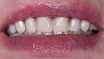 Восстановление эстетики улыбки