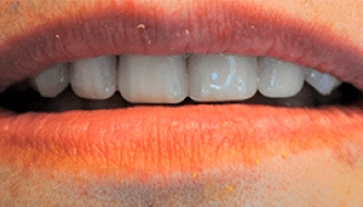 Имплантация - зубы до