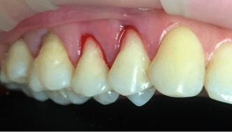 Закрытие оголенных шеек зубов