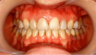 Виниры на верхнюю челюсть, проф. гигиена