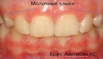 Лечение на брекет системе Damon Q