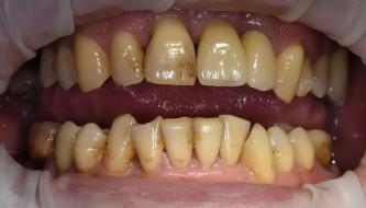 Результаты нашей работы по профессиональной чистке зубов