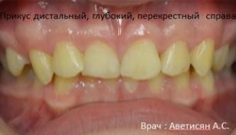 Результат лечения брекетами у нашего ортодонта анны аветисян