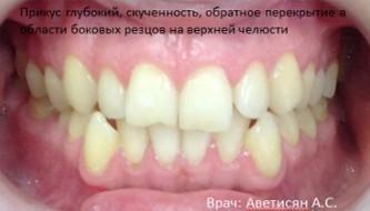 Результат лечения брекетами у нашего ортодонта