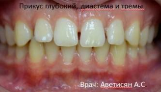 Лечение на брекет-системе damon без удаления зубов