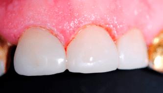 Эстетические реставрации трех верхних передних зубов