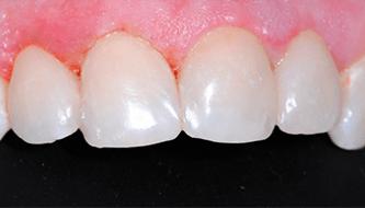 Эстетическая реставрация нанокомпозитом (лечение кариеса)