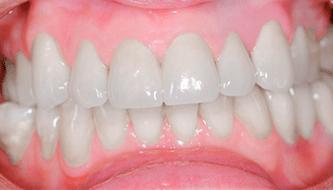 """Проблема """"тетрациклиновых зубов"""""""