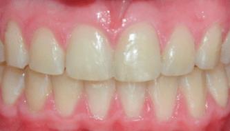 Ортодонтия: исправление прикуса