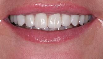Наши работы по реставрации зубов