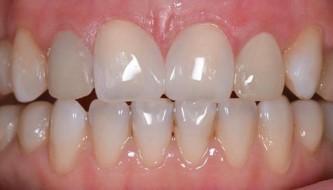 Закрытие диастемы (щели) зубов
