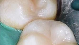 Пример эстетико-функциональной реставрации зуба