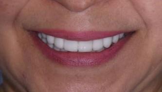 Тотальное восстановление улыбки