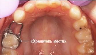 Изготовление и установка «хранителя места» под постоянный зуб