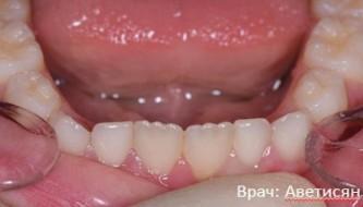 Зубные пластинки
