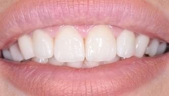 Виниры E-MAX на 4-ех фронтальных зубах