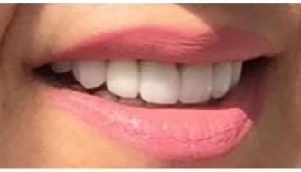 Имплантация - зубы после