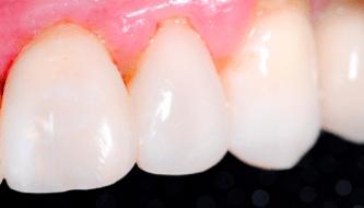 Лечение кариеса и пульпита молочных зубов