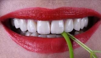 Тотальная реконструкция улыбки