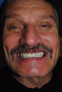 Решение проблемы патологической стираемости зубов
