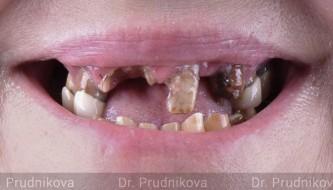Все зубы за неделю. Протезирование на 4 имплантатах